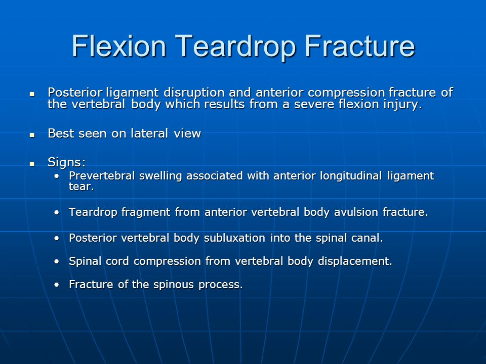Flexion Teardrop Fracture Posterior ligament disruption and anterior compression fracture of the vertebral body which results from a severe flexion injury.