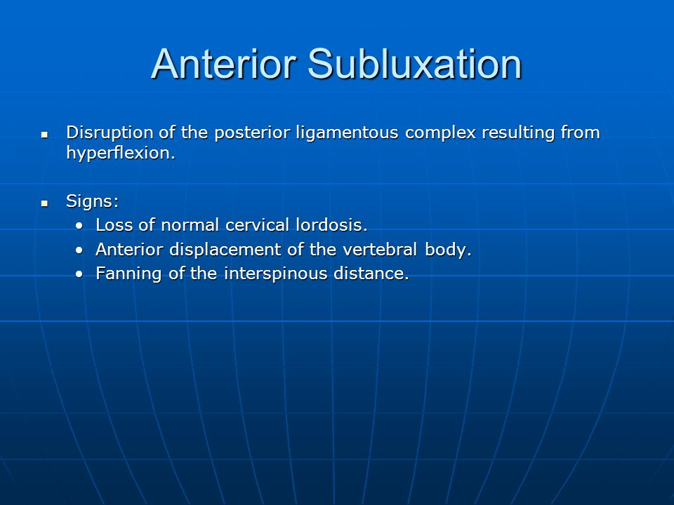 Anterior Subluxation Disruption of the posterior ligamentous complex resulting from hyperflexion. Disruption of the posterior ligamentous complex resu