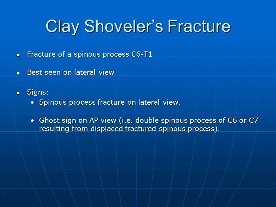 Clay Shoveler's Fracture Fracture of a spinous process C6-T1 Fracture of a spinous process C6-T1 Best seen on lateral view Best seen on lateral view Signs: Signs: Spinous process fracture on lateral view.Spinous process fracture on lateral view.