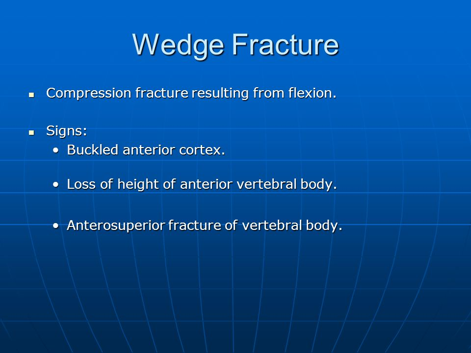 Wedge Fracture Compression fracture resulting from flexion. Compression fracture resulting from flexion. Signs: Signs: Buckled anterior cortex.Buckled