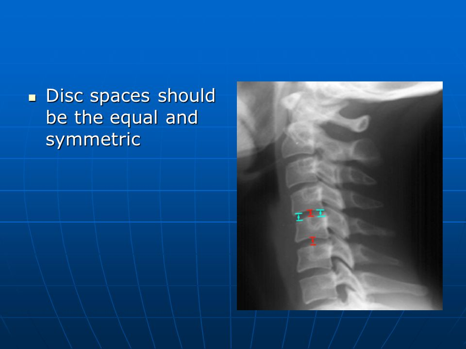 Disc spaces should be the equal and symmetric Disc spaces should be the equal and symmetric