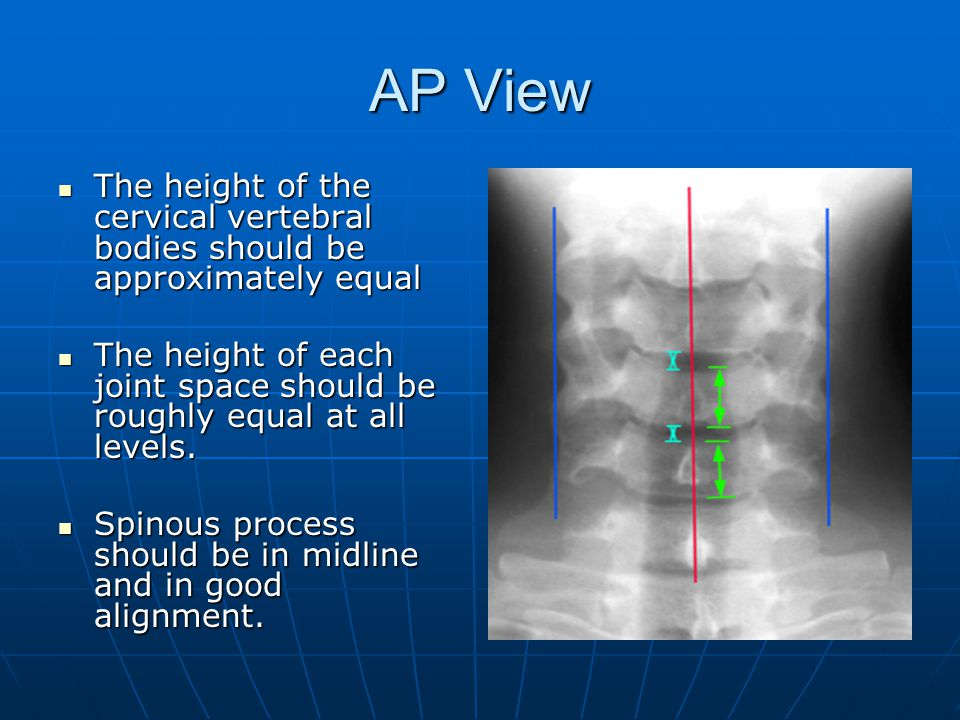 AP View The height of the cervical vertebral bodies should be approximately equal The height of the cervical vertebral bodies should be approximately