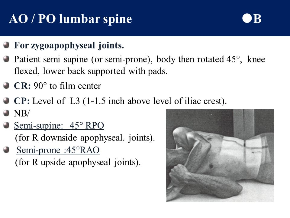 Lateral lumbosacral spine (L5 – S1)  B For lat L5 – S1 joint space, to show Spondylolisthesis or other pathologies of L4 to L5, or L5 to S1 Patient i