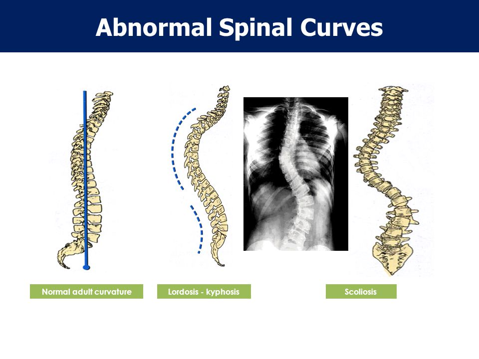 Vertebral Column – Anatomy Review Convex Concave Normal Spinal Curves Cervical curve Thoracic curve Lumbar curve Sacral curve