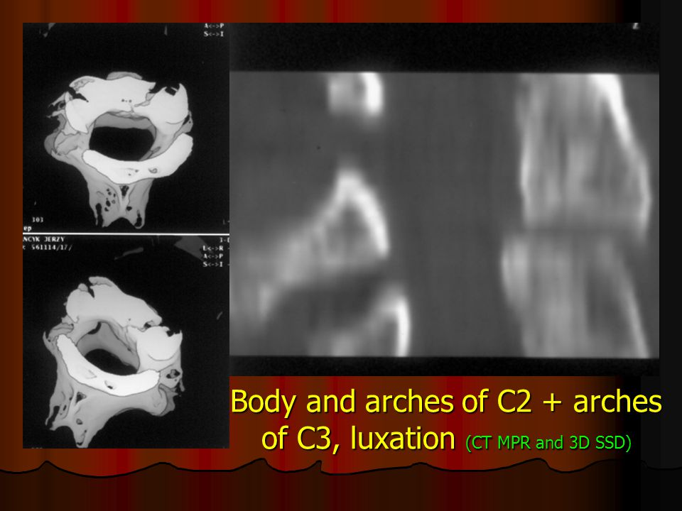 Body and arches of C2 + arches of C3, luxation (CT MPR and 3D SSD)