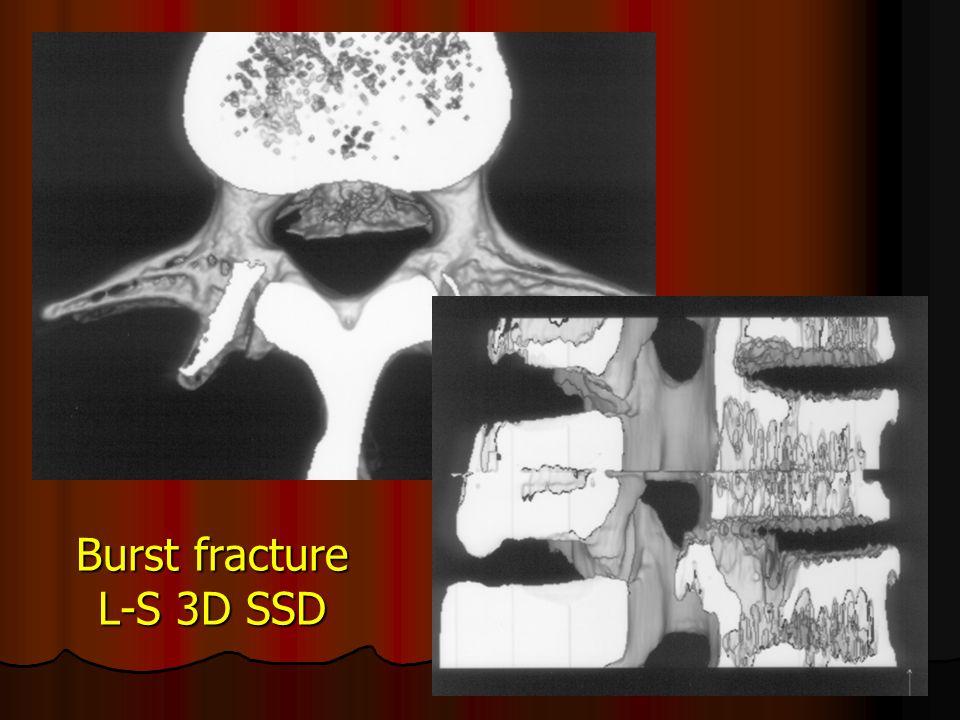 Burst fracture L-S 3D SSD