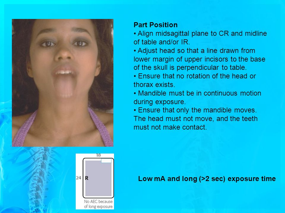 Part Position Align midsagittal plane to CR and midline of table and/or IR. Adjust head so that a line drawn from lower margin of upper incisors to th