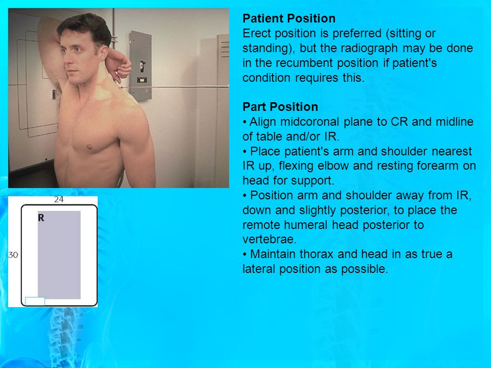 Patient Position Erect position is preferred (sitting or standing), but the radiograph may be done in the recumbent position if patient's condition re