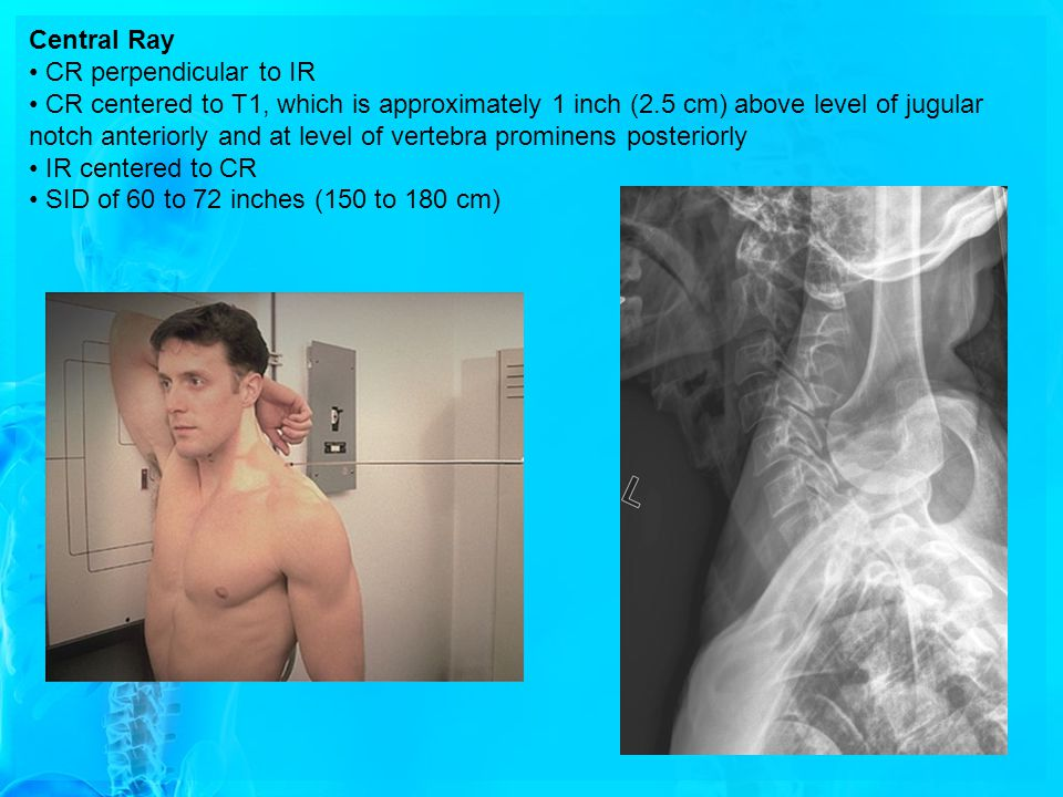 Central Ray CR perpendicular to IR CR centered to T1, which is approximately 1 inch (2.5 cm) above level of jugular notch anteriorly and at level of v