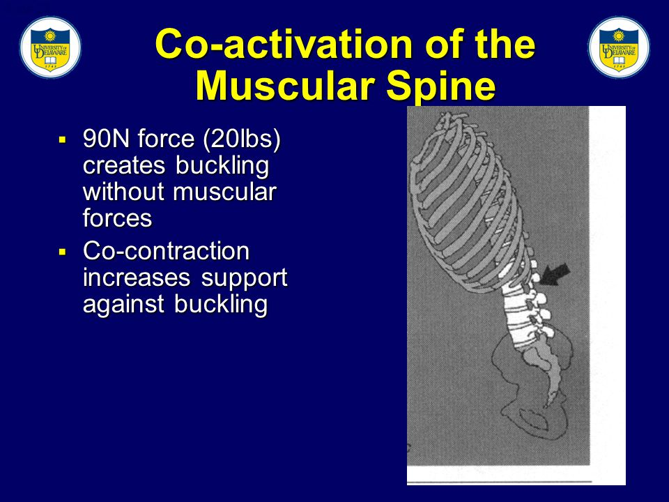 Slide 23 Co-activation of the Muscular Spine  90N force (20lbs) creates buckling without muscular forces  Co-contraction increases support against buckling