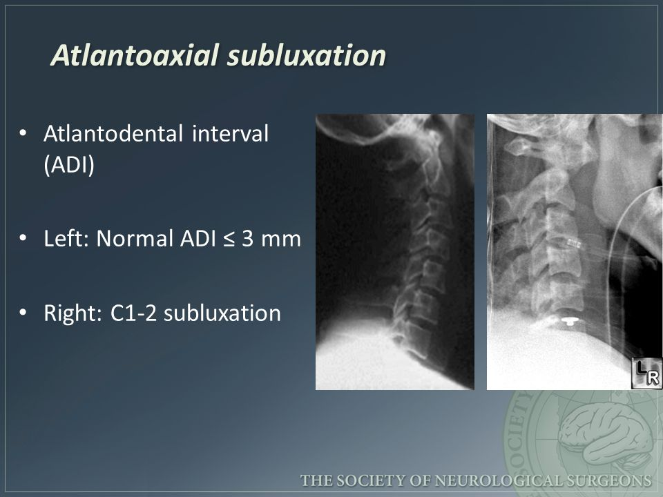 Atlantoaxial subluxation Atlantodental interval (ADI) Left: Normal ADI ≤ 3 mm Right: C1-2 subluxation