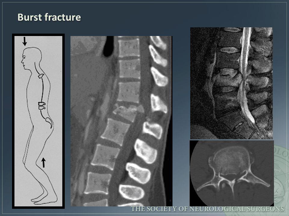 Burst fracture