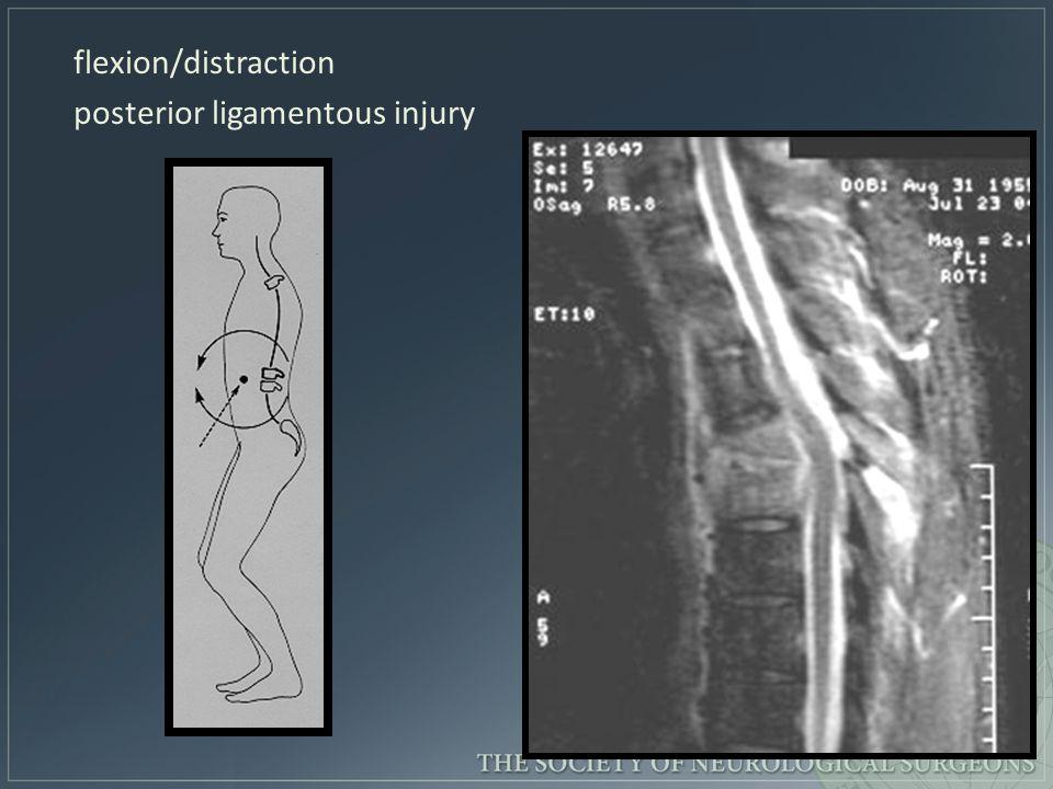 flexion/distraction posterior ligamentous injury