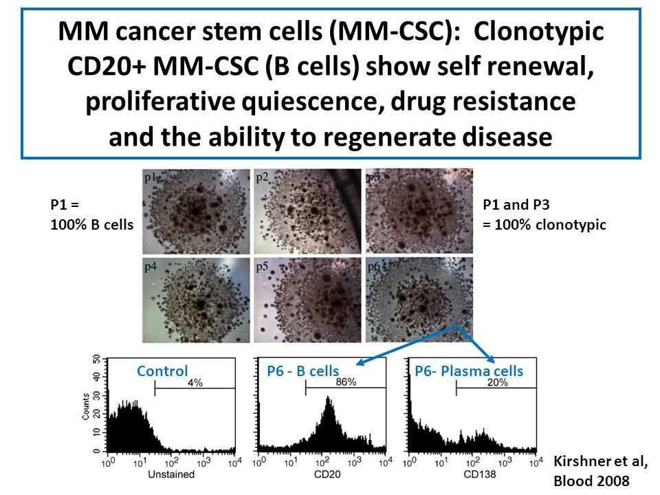 Kirshner et al, Blood 2008 MM cancer stem cells (MM-CSC): Clonotypic CD20+ MM-CSC (B cells) show self renewal, proliferative quiescence, drug resistan