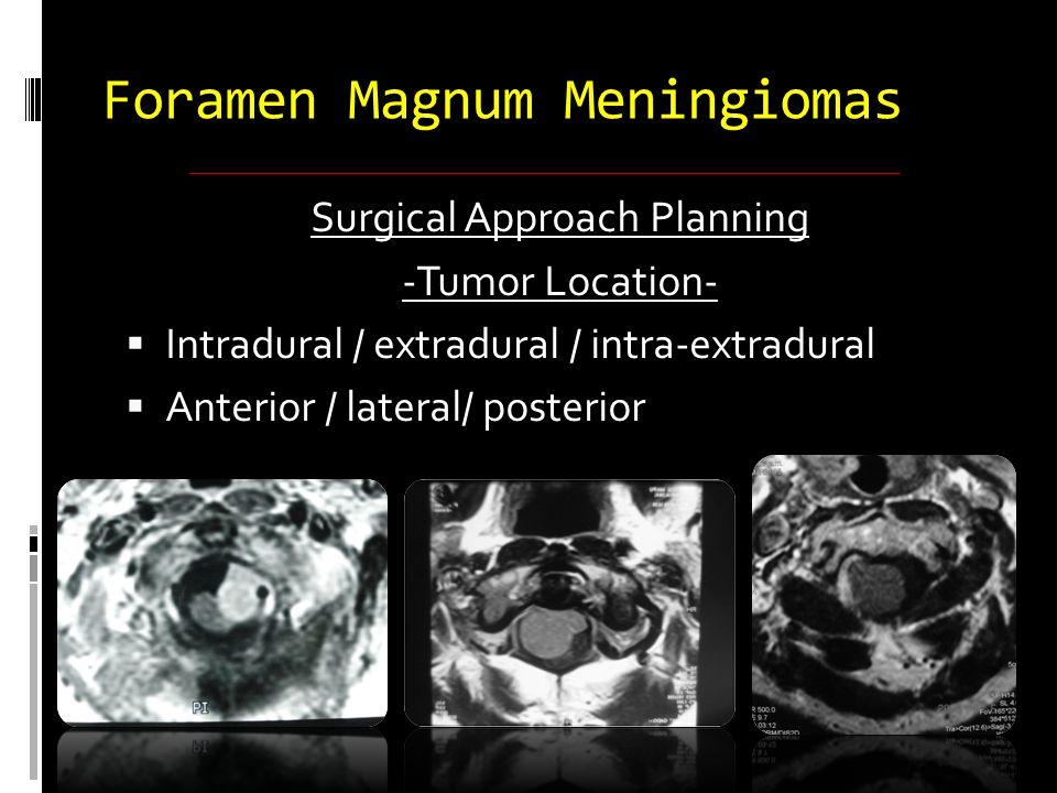 Surgical Approach Planning -Tumor Location-  Intradural / extradural / intra-extradural  Anterior / lateral/ posterior Foramen Magnum Meningiomas