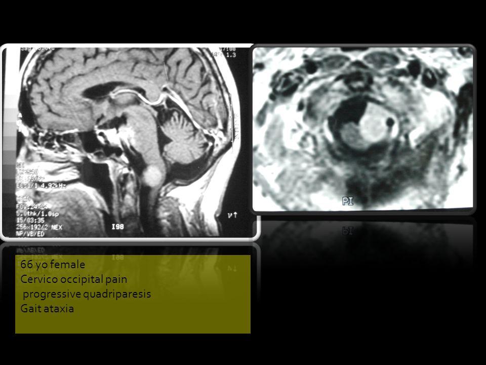 66 yo female Cervico occipital pain progressive quadriparesis Gait ataxia