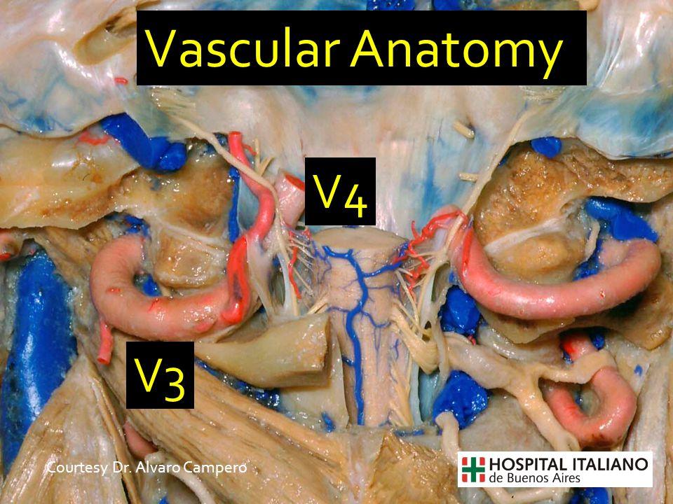 Vascular Anatomy V3 V4 Courtesy Dr. Alvaro Campero