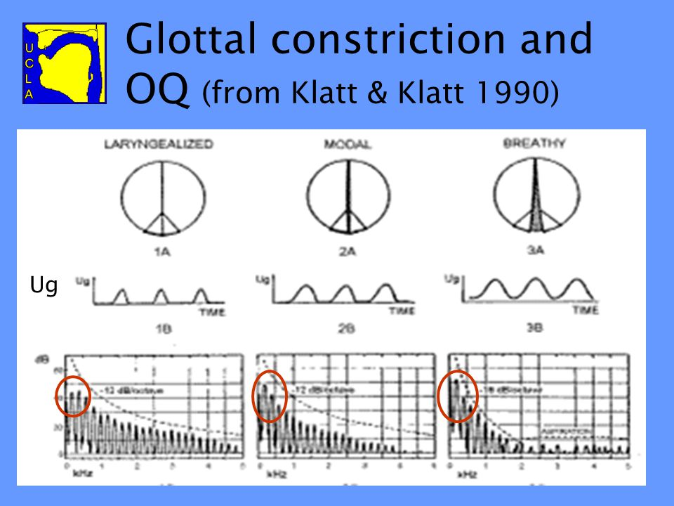 Related to Open Quotient Vocal fold vibration cycle divides into open vs. closed portions Open portion of cycle as proportion of total cycle: Open Quo