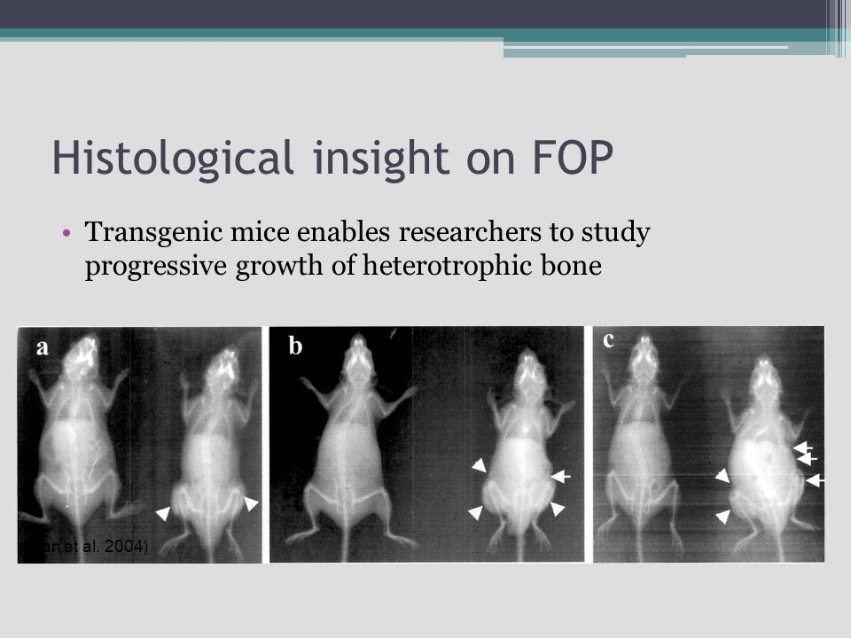 Histological insight on FOP Transgenic mice enables researchers to study progressive growth of heterotrophic bone (Kan et al. 2004)