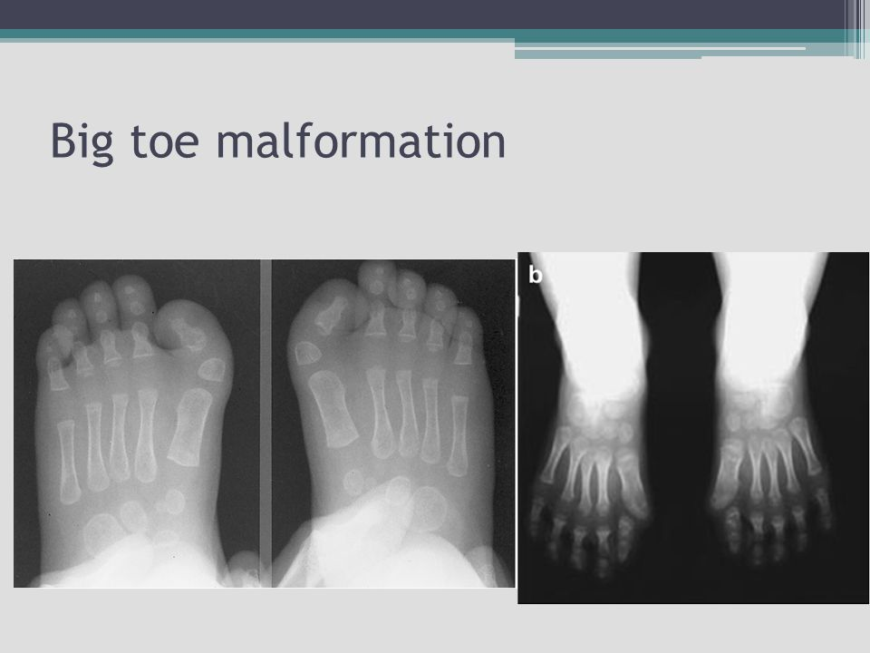 Big toe malformation