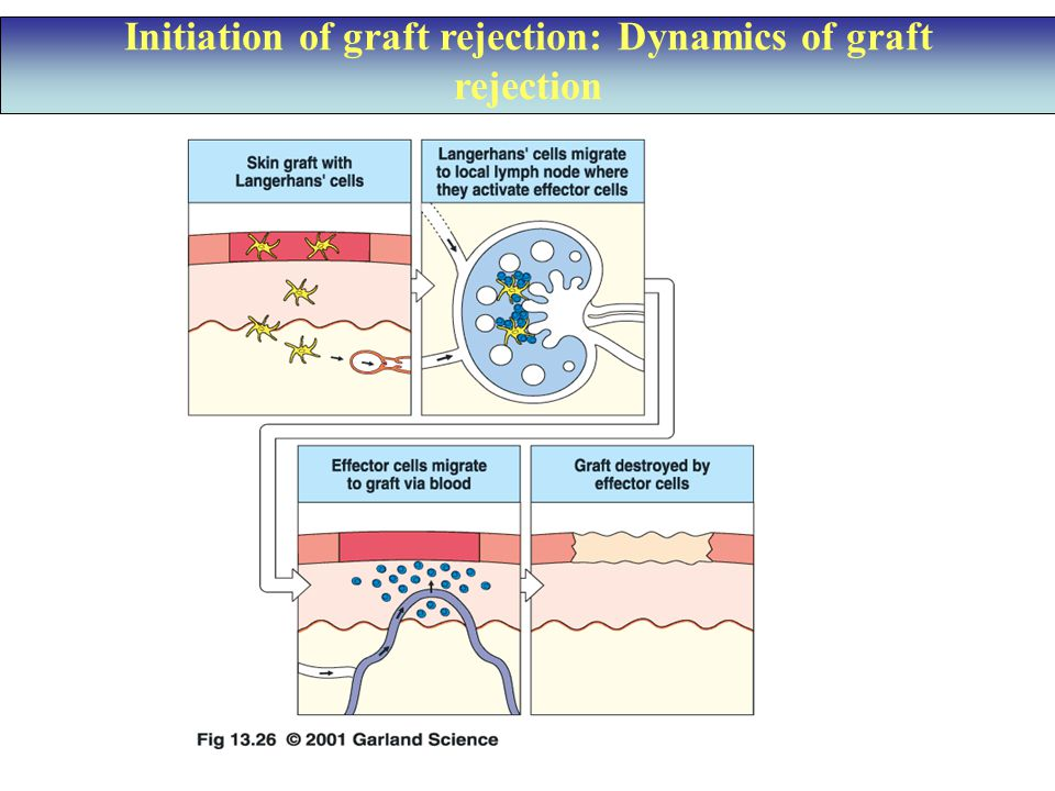 Initiation of graft rejection: Dynamics of graft rejection