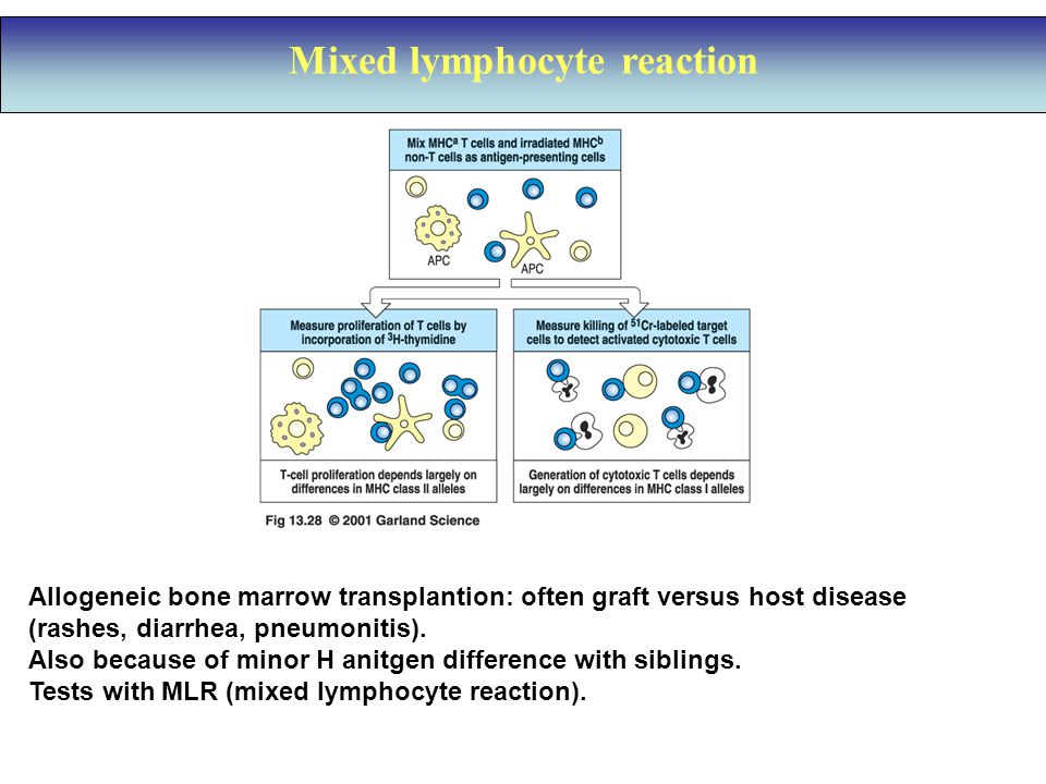 Mixed lymphocyte reaction Allogeneic bone marrow transplantion: often graft versus host disease (rashes, diarrhea, pneumonitis).