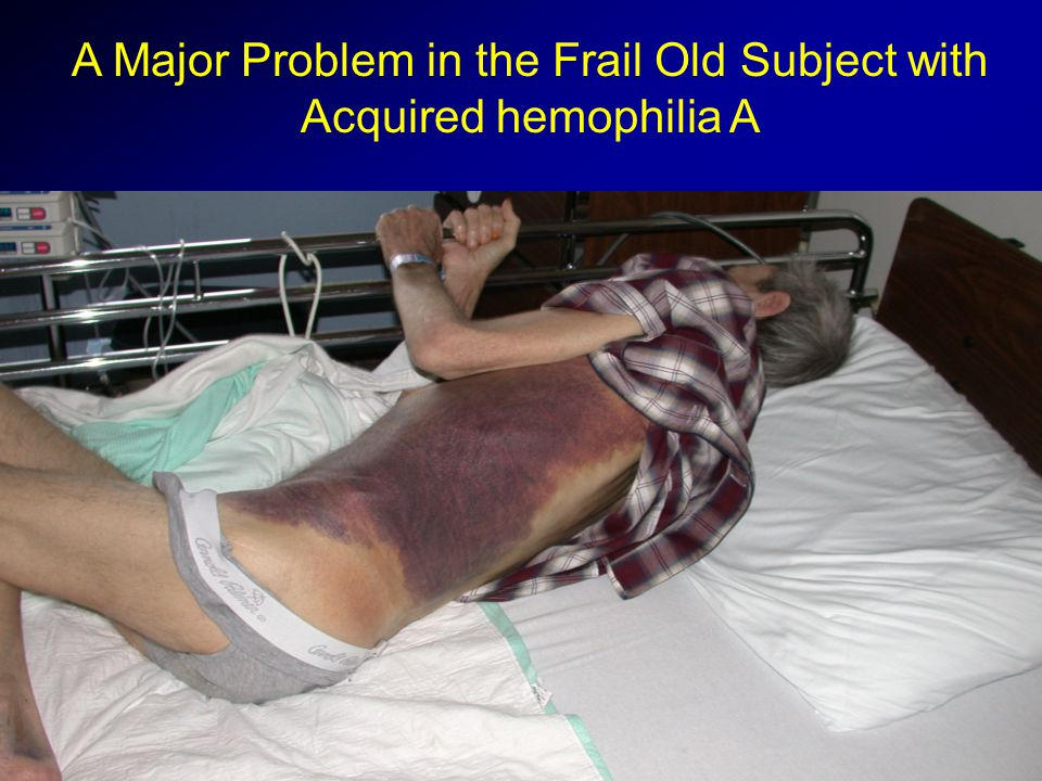 An Expensive Problem in Congenital Hemophilia A Cost for Products: $1,285,892 Right Leg Amputation in a 42 y Man with Hemophilia A