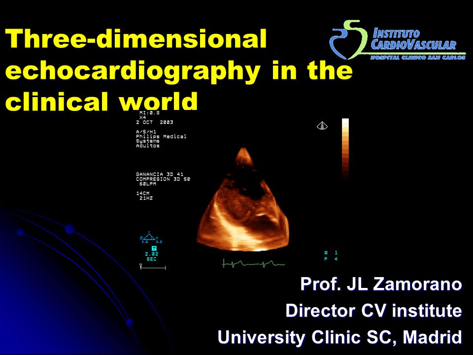 Three-dimensional echocardiography in the clinical world Prof. JL Zamorano Director CV institute University Clinic SC, Madrid