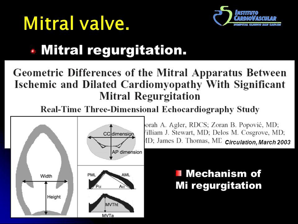 Mitral valve. Mitral regurgitation. Circulation, March 2003 Mechanism of Mi regurgitation