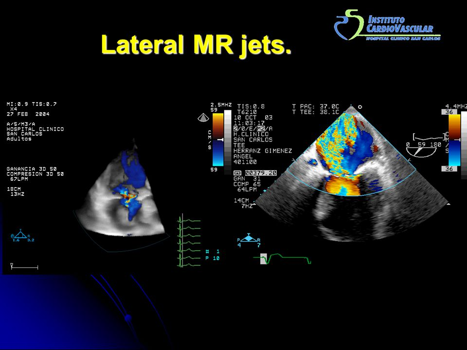 Lateral MR jets.