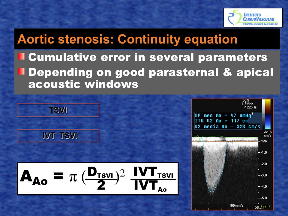 Aortic stenosis: Continuity equation Cumulative error in several parameters Depending on good parasternal & apical acoustic windows A Ao = π ( ) 2 D TSVI IVT TSVI 2 IVT Ao TSVITSVI IVT TSVI IVT TSVI
