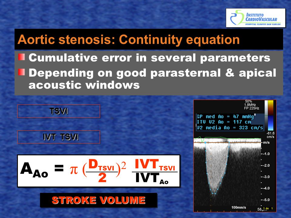 Aortic stenosis: Continuity equation Cumulative error in several parameters Depending on good parasternal & apical acoustic windows A Ao = π ( ) 2 D TSVI IVT TSVI 2 IVT Ao TSVITSVI IVT TSVI IVT TSVI STROKE VOLUME