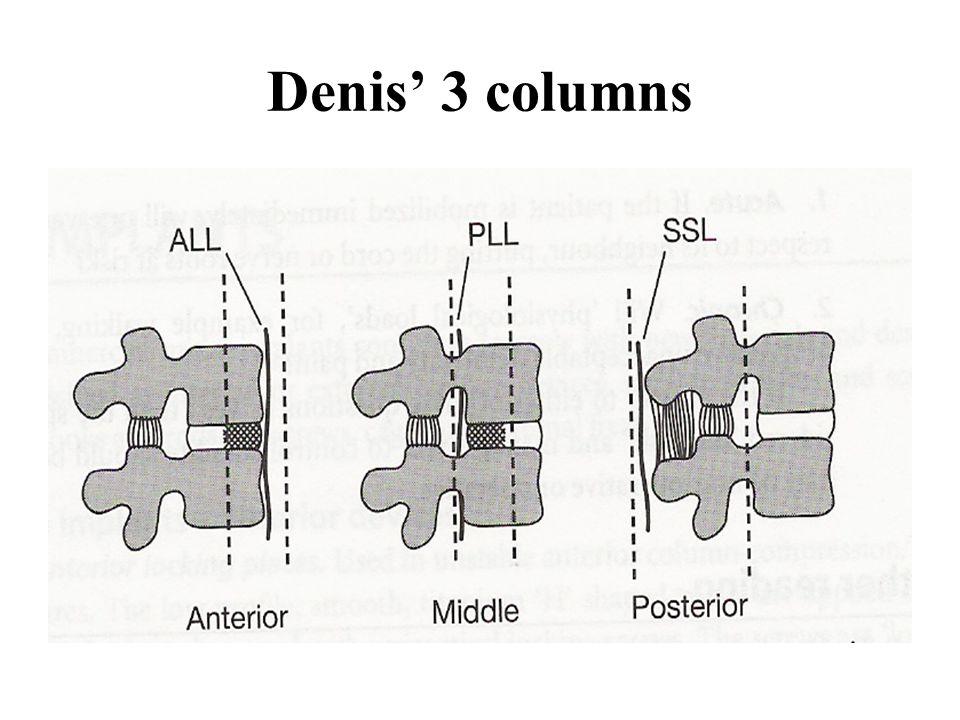 Denis' 3 columns