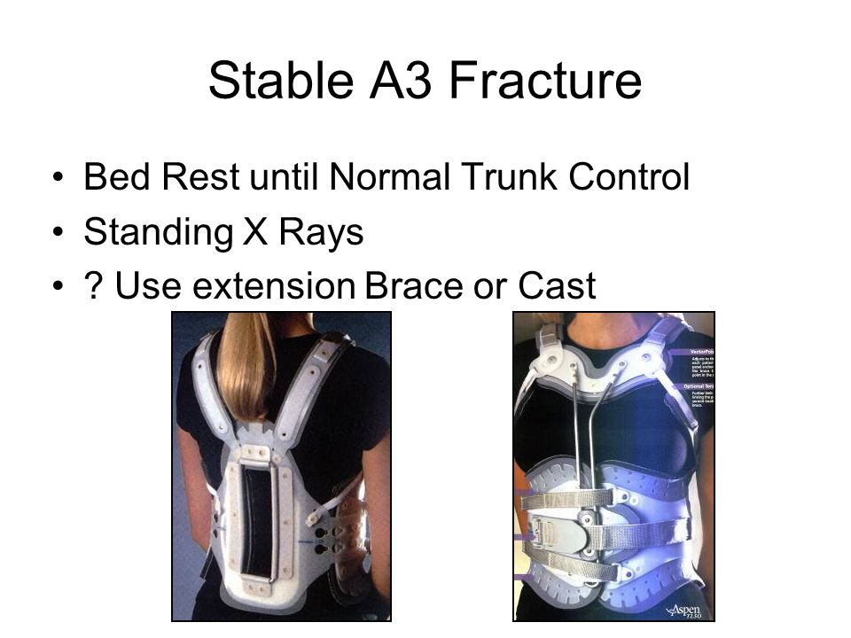 Stable A3 Fracture Bed Rest until Normal Trunk Control Standing X Rays ? Use extension Brace or Cast
