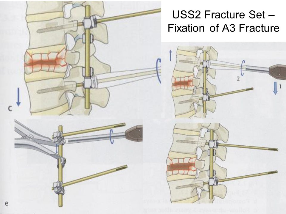 USS2 Fracture Set – Fixation of A3 Fracture