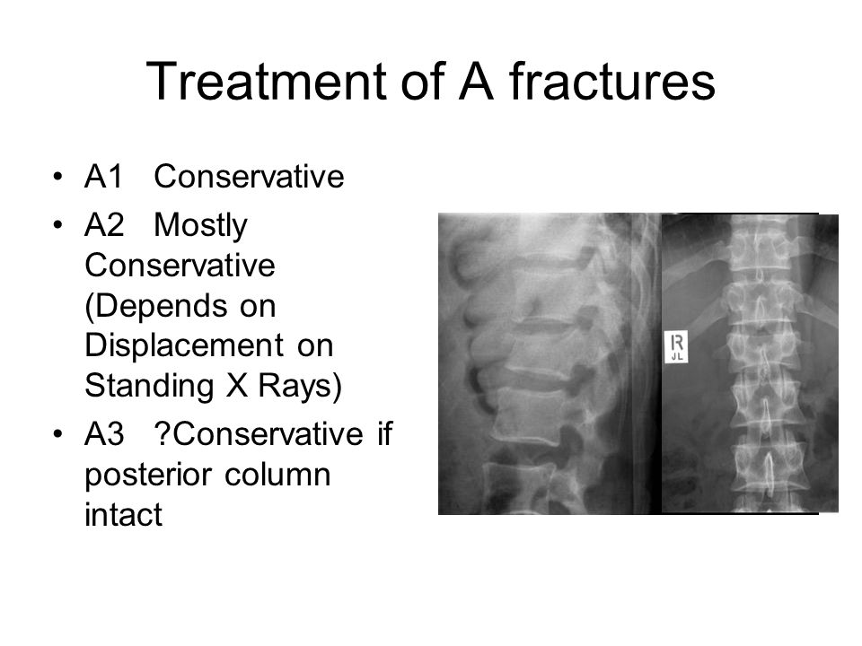 Treatment of A fractures A1 Conservative A2 Mostly Conservative (Depends on Displacement on Standing X Rays) A3 ?Conservative if posterior column inta