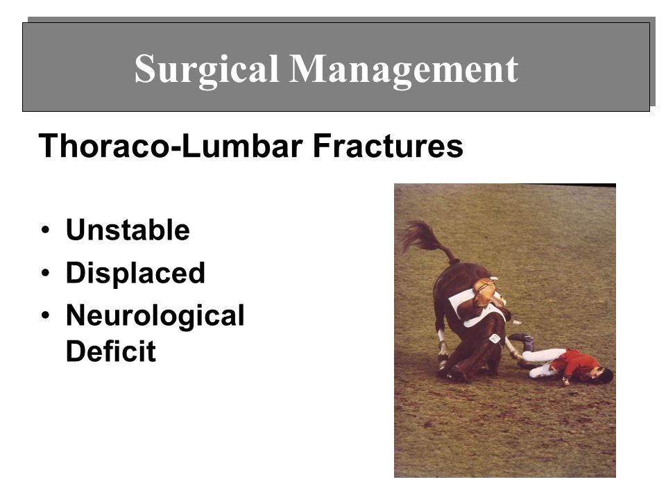 Thoraco-Lumbar Fractures Unstable Displaced Neurological Deficit Surgical Management