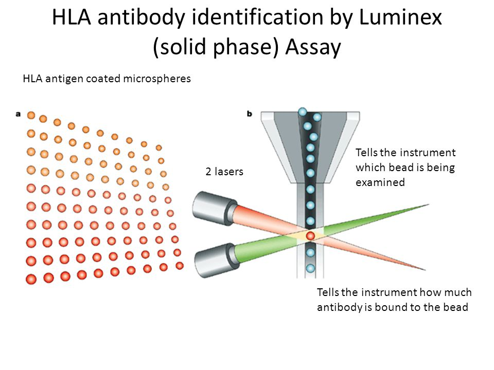 HLA antibody identification by Luminex (solid phase) Assay HLA antigen coated microspheres Tells the instrument which bead is being examined Tells the instrument how much antibody is bound to the bead 2 lasers