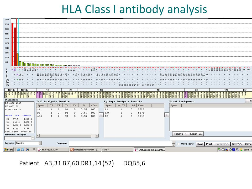Patient A3,31 B7,60 DR1,14 (52) DQB5,6 HLA Class I antibody analysis