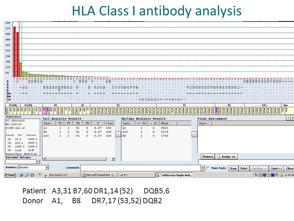 Patient A3,31 B7,60 DR1,14 (52) DQB5,6 Donor A1, B8 DR7,17 (53,52) DQB2 HLA Class I antibody analysis