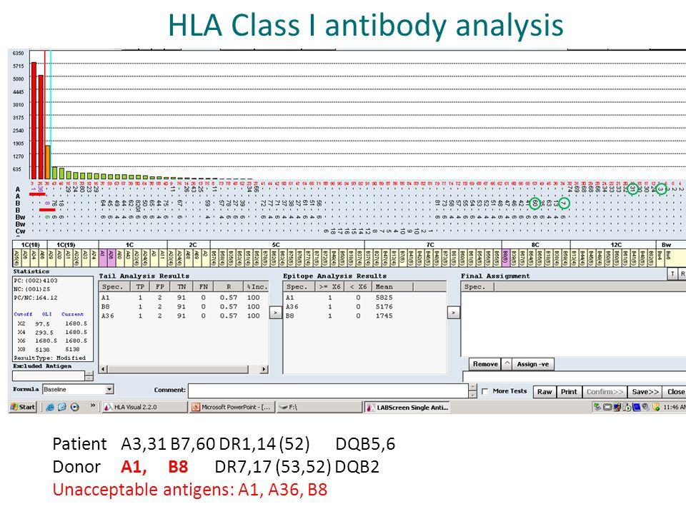 Patient A3,31 B7,60 DR1,14 (52) DQB5,6 Donor A1, B8 DR7,17 (53,52) DQB2 Unacceptable antigens: A1, A36, B8 HLA Class I antibody analysis