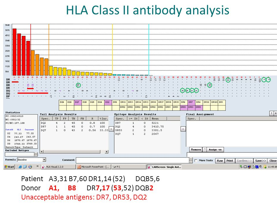 Patient A3,31 B7,60 DR1,14 (52) DQB5,6 Donor A1, B8 DR7,17 (53,52) DQB2 Unacceptable antigens: DR7, DR53, DQ2 HLA Class II antibody analysis