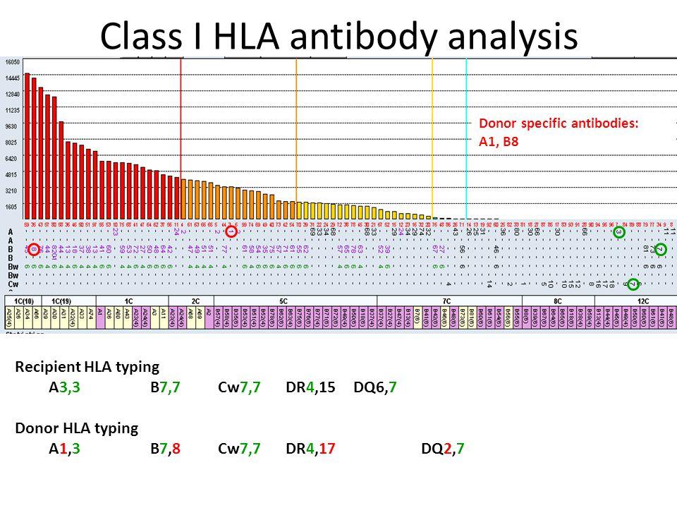 Class I HLA antibody analysis Recipient HLA typing A3,3 B7,7 Cw7,7 DR4,15 DQ6,7 Donor HLA typing A1,3 B7,8 Cw7,7DR4,17DQ2,7 Donor specific antibodies: