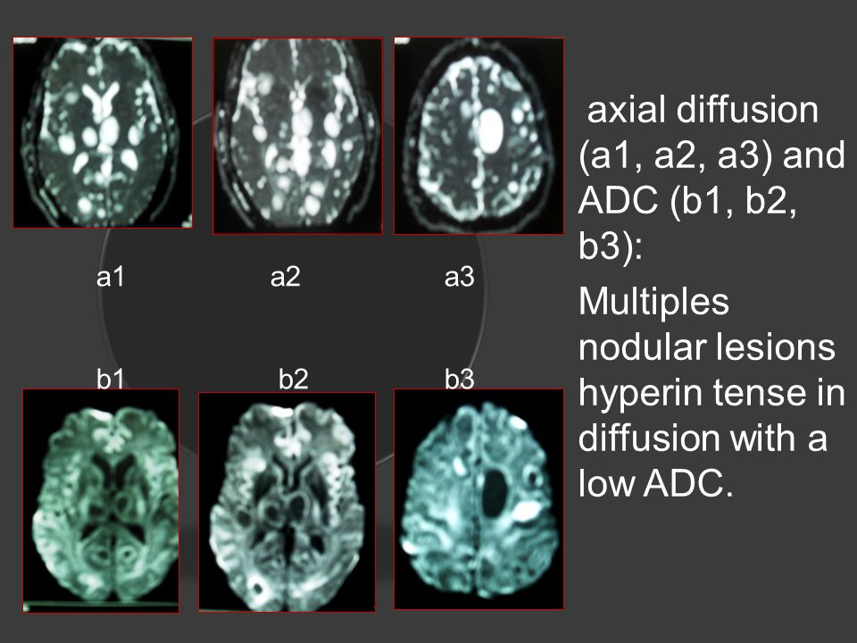 axial diffusion (a1, a2, a3) and ADC (b1, b2, b3): Multiples nodular lesions hyperin tense in diffusion with a low ADC.