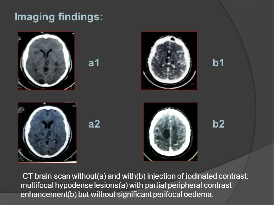 CT brain scan without(a) and with(b) injection of iodinated contrast: multifocal hypodense lesions(a) with partial peripheral contrast enhancement(b) but without significant perifocal oedema.