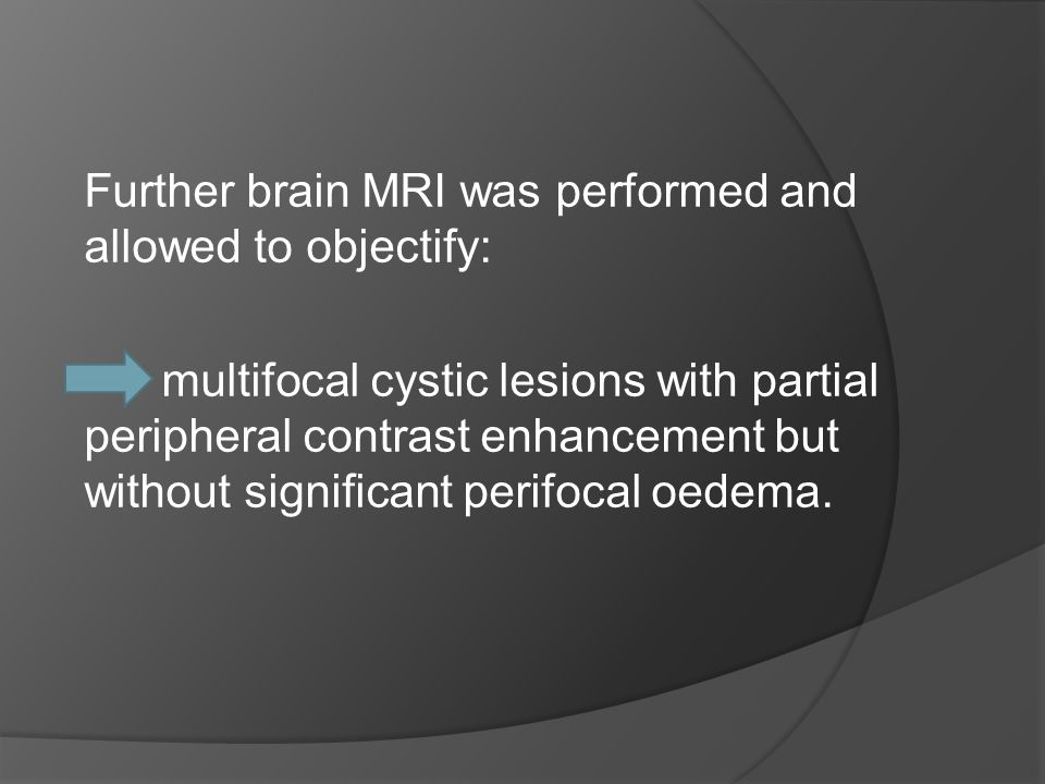 Further brain MRI was performed and allowed to objectify: multifocal cystic lesions with partial peripheral contrast enhancement but without significant perifocal oedema.