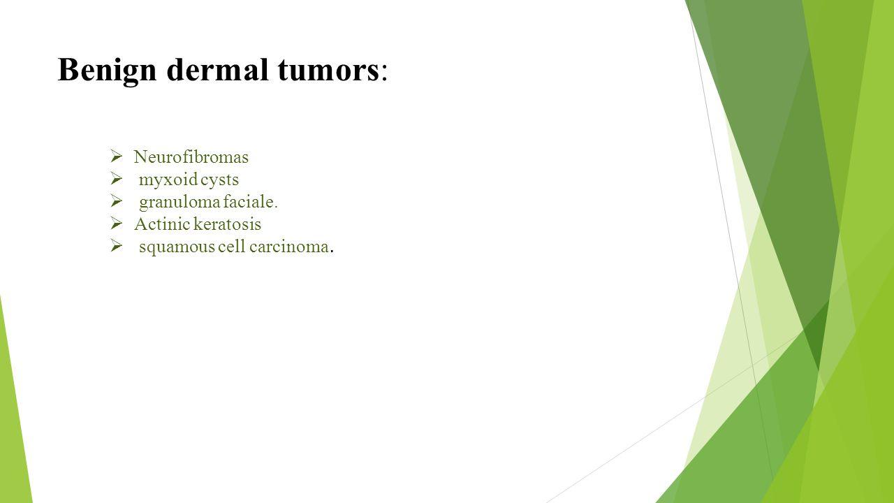 Benign dermal tumors:  Neurofibromas  myxoid cysts  granuloma faciale.  Actinic keratosis  squamous cell carcinoma.