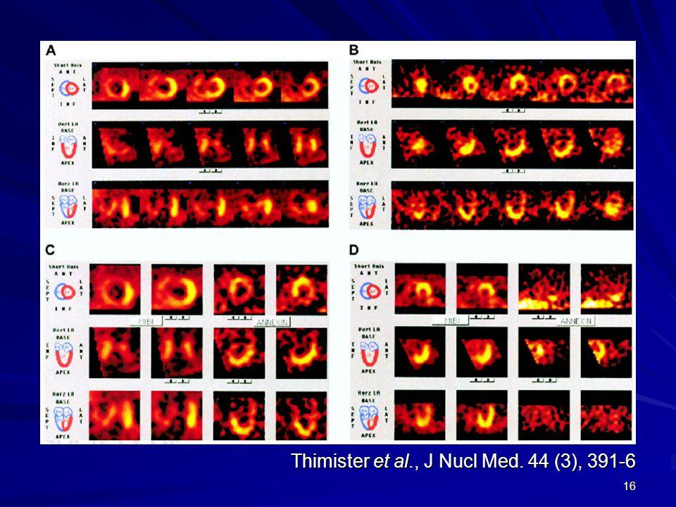16 Thimister et al., J Nucl Med. 44 (3), 391-6