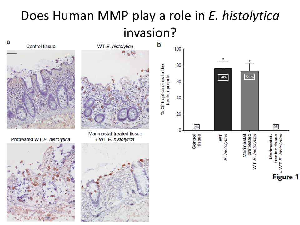 Does Human MMP play a role in E. histolytica invasion