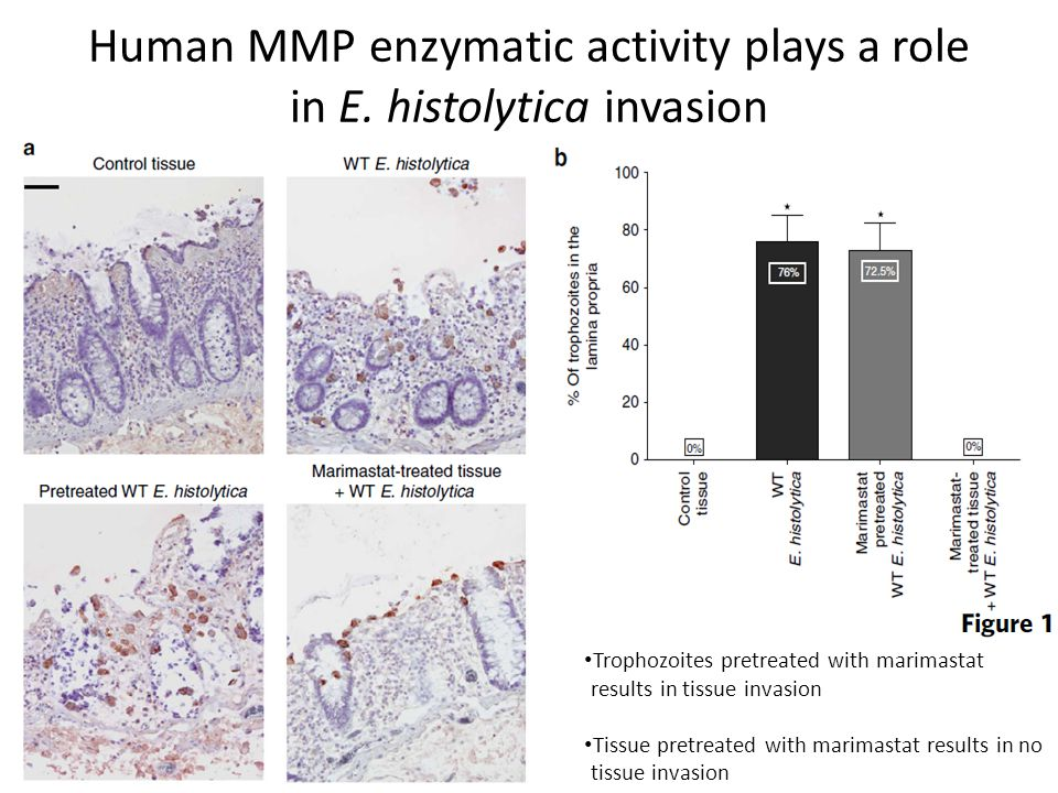Human MMP enzymatic activity plays a role in E.